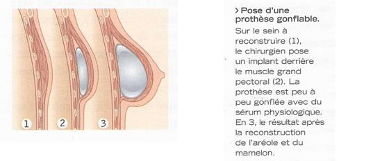sein gonflé après radiothérapie